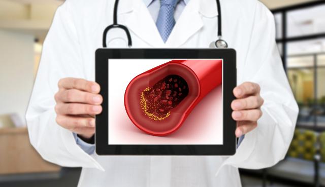 L'esperto risponde: perché il colesterolo non cala anche se sono a dieta?