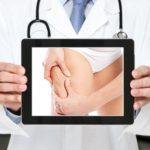 L'esperto risponde: la cellulite dipende da cosa mangio?