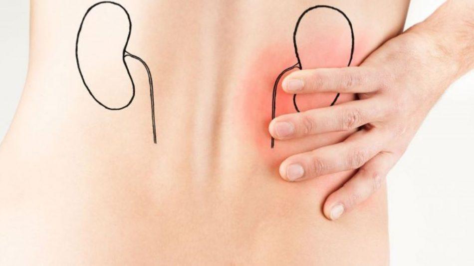 La colica renale si presenta con un dolore acuto e improvviso a livello addominale e lombare: questo evento è dovuto proprio all'ostruzione delle vie urinarie ad opera dei calcoli renali.