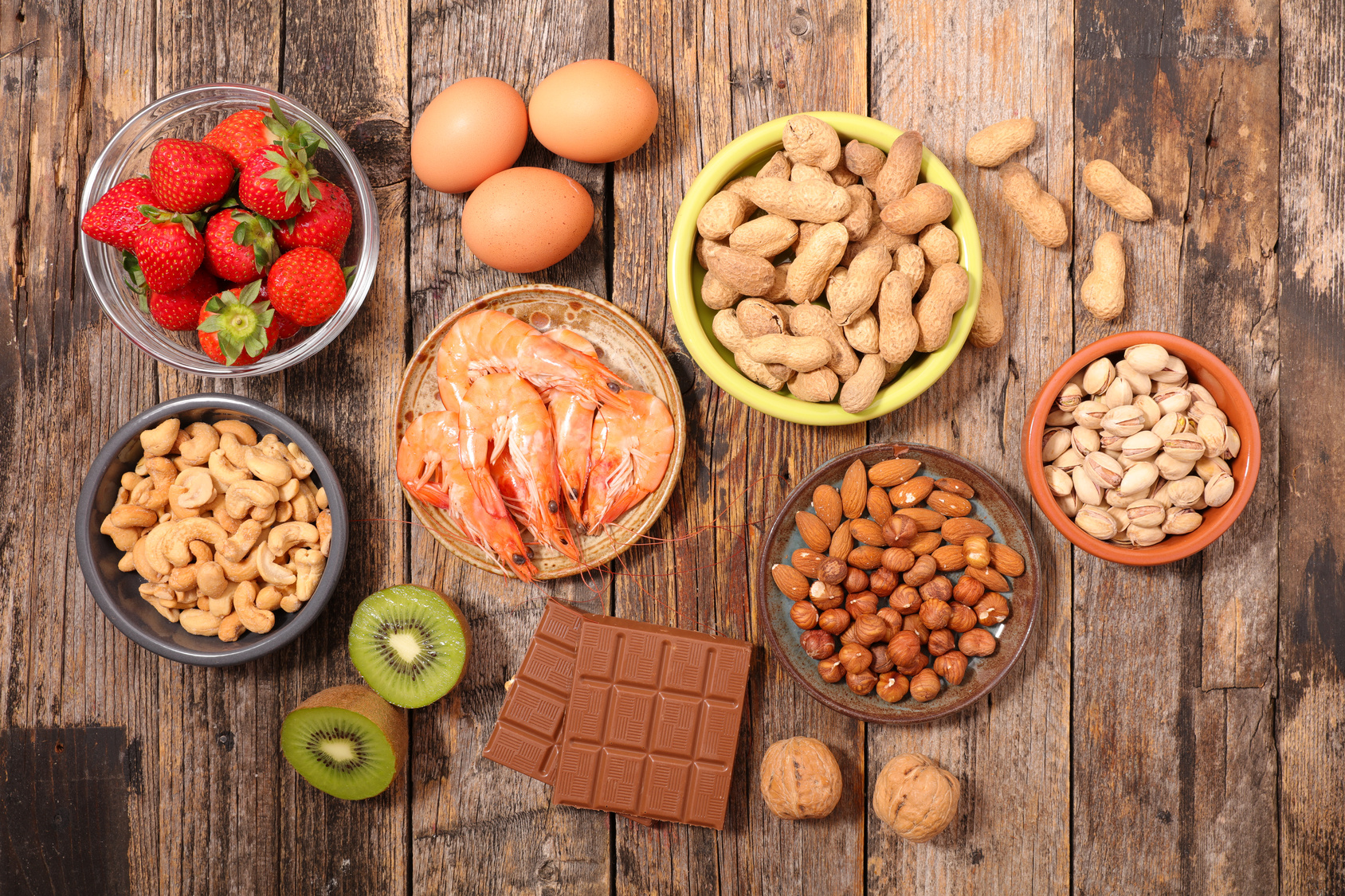 """Sono migliaia le molecole """"estranee"""" che entrano in contatto con la nostra barriera intestinale: potenzialmente ogni cibo può scatenare una reazione avversa. Ma qual è la durata di allergie e intolleranze alimentari?"""