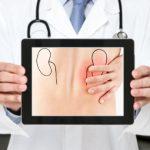 L'esperto risponde: alimentazione e calcoli renali